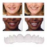 Fundas  Sonrisa Perfecta Dientes Superiores No Es Prótesis