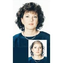Alopecia, Peluca, Prótesis Capilar 100% Pelo Natural
